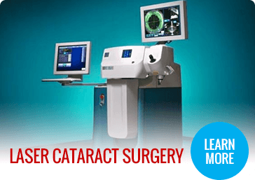 Laser Cataract Surgery